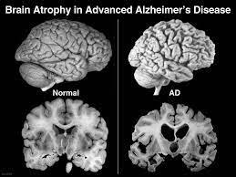 Penyakit Alzheimer Bukanlah Penyakit Dimensia